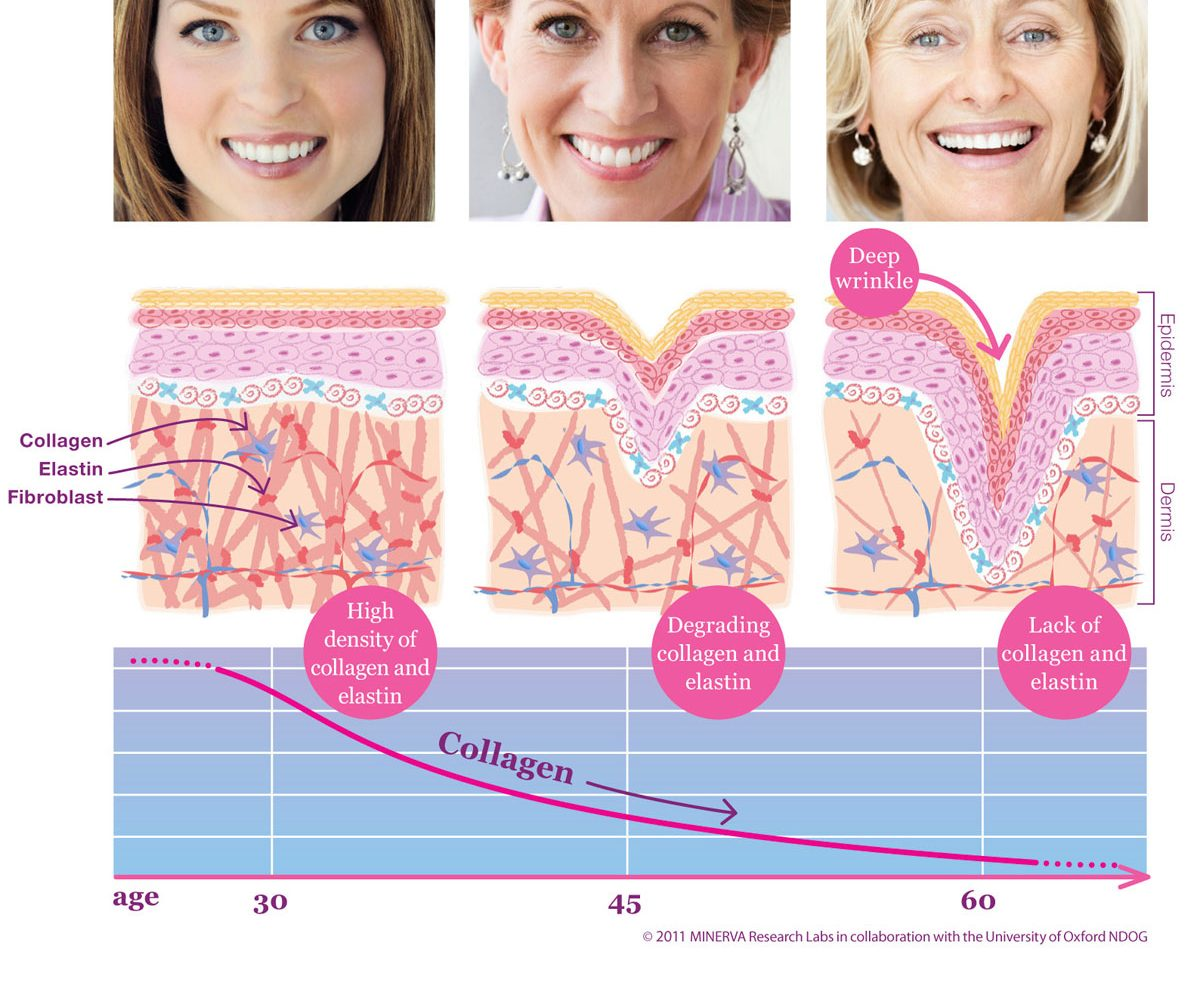 Aesthetic Science Skincare's EpiWave™ Ultrasonic Wrinkle RX branded treatment